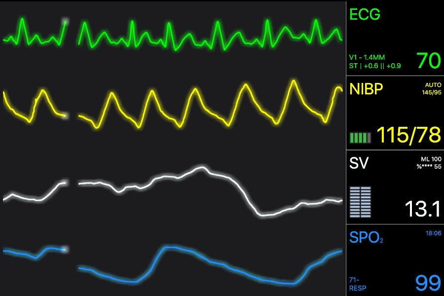 JavaScript Vital Signs ECG/EKG Medical Demo